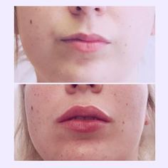 Gorgeous, subtle lip transformation. How pretty are this girls lips