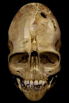 The Andover Skull  In the 1950's, Mr F and Mrs B Morris, moved to Andover, Massachusetts USA.     They were disappointed to discover the house they had purchased had not been fully emptied and that the attic remained stacked with books, broken furniture and other such possessions. A year or so after moving in Mrs Morris found a heavy wooden box which had been nailed shut. That evening her husband opened the box and together they discovered a large and disturbing skull.
