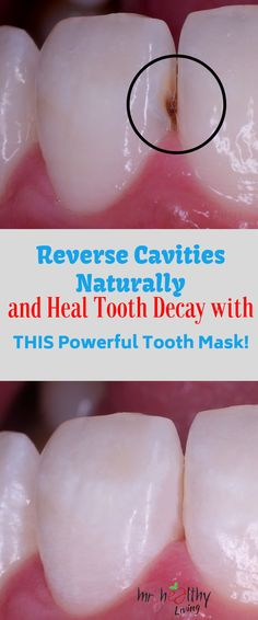 Get rid of tooth decay and cavities naturally with these homemade tooth masks! Get rid of tooth decay and cavities naturally with these homemade tooth masks! Teeth Health, Healthy Teeth, Dental Health, Oral Health, Health Remedies, Home Remedies, Natural Remedies, Natural Cavity Remedy, Cavity Healing