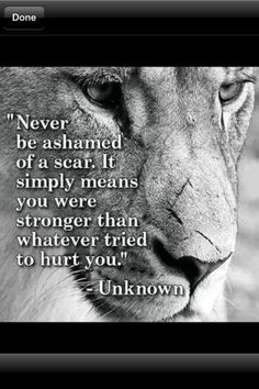 - Unknown... Especially Cancerous Surgery Scars. Never Ever be ashamed of these!!! They're our battle scars, a battle we Must Win! Just Never Give Up! I Won't, I Refuse!  How 'bout you? dhw.