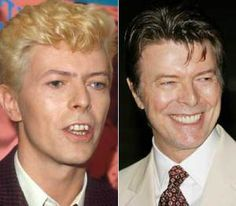 Celebrity Smiles: before and after