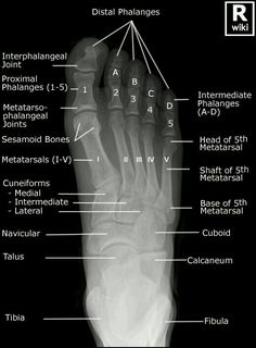 Radiographic Anatomy - Skull Lateral   Radiographic Anatomy ...