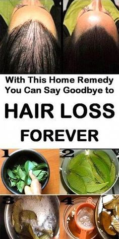 Stop hair loss with this incredible home remedy INTROHAIR™ Natural ReGrowth Serum Baby Hair Loss, Hair Loss Cure, Anti Hair Loss, Stop Hair Loss, Prevent Hair Loss, Argan Oil For Hair Loss, Hair Loss Shampoo, Argan Oil Hair, Home Remedies For Hair