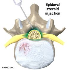 Epidural Steroid Injection (ESI): A Patient's Perspective