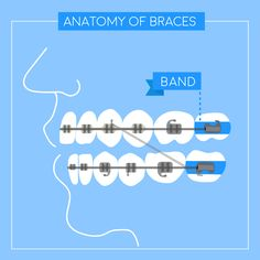 BRACES, PIECE BY PIECE: Some cases require bands, which provide a strong anchor for brackets.
