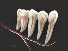 Dental Life, Dental Art, Dental Teeth, Dental Implants, Teeth Braces, Human Anatomy Model, Anatomy Models, Tooth Nerve, Cracked Tooth