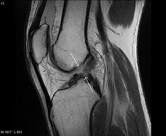 Una lesión de ligamento cruzado anterior diagnostico y tratamiento, Resonancia magnética, Rayos x, Radiología.