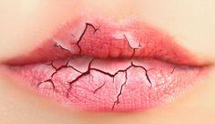 Você está com os lábios ressecados? Aprenda a cuidar dos lábios ressecados e como recupera-los. Dicas e detalhes de cuidados para ressecamento extremo.