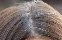 Incomodada com os cabelos brancos? Não quer pintar ou usar química nos cabelos? Então experimente essas receitas caseiras para eliminar os fios brancos!