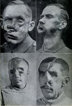 Dismembered Soldiers WWI | Facial Injuries