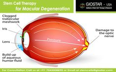 #Stem #Cell #Therapy for #Macular #Degenration  Know more visit : http://www.giostar.com/ Email: stemcells@giostar.com