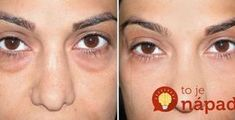 Tmavé kruhy pod očami? Na ich rýchle odstránenie potrebujete len 1 vec! Health And Beauty, Health Fitness, Face, Tvar, Articles, Drink, Crafts, Beauty, Baking Soda