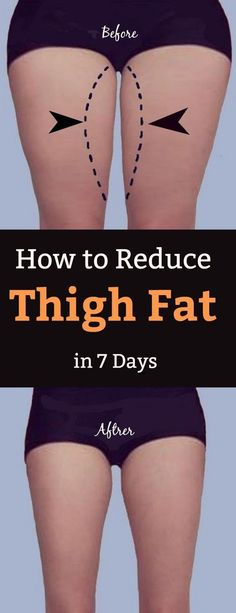 How to Lose Thigh Fat Fast in a Week at Home How To . How to Lose Thigh Fat Fast in a Week at Home How To Reduce Cellulite In Lose Thigh Fat Fast, Reduce Thigh Fat, How To Lose Weight Fast, How To Reduce Thighs, Lose Stomach Fat Fast, Loose Weight, Lose Back Fat, Burn Belly Fat Fast, How To Reduce Fat