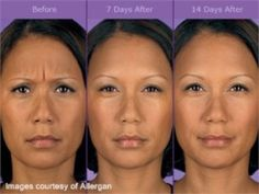 Are you considering Botox Cosmetic? See the best Botox before and after photos…