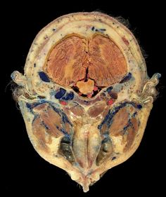 Cross-section of a plastinated human head