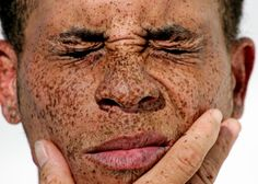 @www.tmcfoto.com  He has a dope ass skin texture. #Freckles