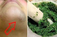 She Applied This Paste On Her Chin And Held It For 30 Minutes! In The Morning, She Said Good-Bye To The Ugly Hair!