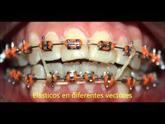40 Ideas De Ortodoncia Ortodoncia Odontología Brackets Dentales