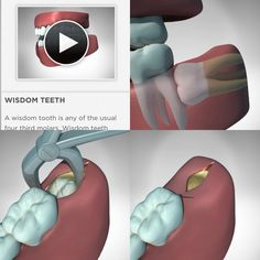 Curious what happens during Wisdom Teeth Surgery? Download Orca Health apps found in the Medial Section of the iTunes app store today to see interactive, 3D imaging of numerous procedures!