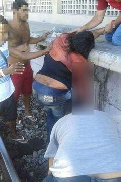 O EMPENHO: Mulher perde parte do braço ao cair na estação de ...