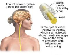 Upper And Lower Motor Neuron Disease Symptoms, Causes