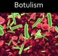 wound botulism antibiotics