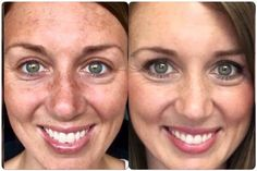 """Look at her reversal in skin!!! I love reverse!!! Erasing the signs of sun damage, """"pregnancy mask,"""" brown spots and scarring!!! Contact me at Emccray.myrandf.com"""