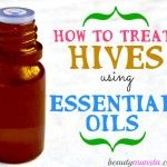 Here are the 5 best essential oils to treat hives plus essential oil recipes that work! Hives are red, itchy raised bumps/welts on the skin that look jus. Essential Oil For Hives, Essential Oil Spray, Essential Oils For Headaches, Doterra Essential Oils, Young Living Essential Oils, Essential Oil Blends, How To Treat Hives, Hives Remedies, Health Remedies