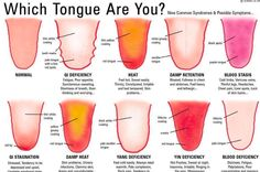 Every person's tongue is unique, withdistinct characteristics thatreflecttheir inner health. Ever been to a TCM (Traditional Chinese Medicine) doctor or an acupuncturist and been asked to stick out your tongue? There is a reason forthis. TCM believes the tongue is a microcosm of the entire body and will reflect its excesses and deficiencies. The shape, […]