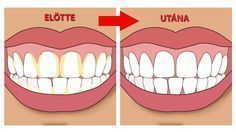 Natural Teeth Whitening Remedies Improper brushing can lead to plaque formation that, when ignored, forms tartar, a solidified form of plaque. Know how to remove tartar Teeth Whitening Remedies, Natural Teeth Whitening, Dental Health, Dental Care, Oral Health, Health Tips, Gum Health, Teeth Health, Tartar Removal
