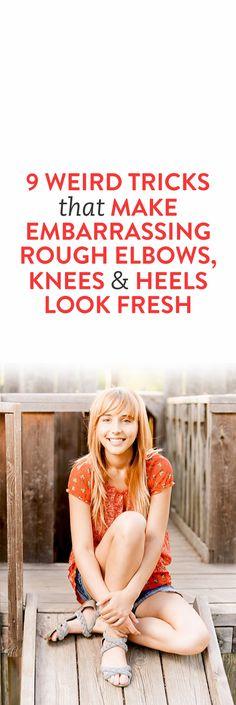 9 Weird Tricks That Make Embarrassing Rough Elbows, Knees and Heels Look Fresh