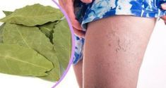 Get Rid Of Varicose Veins Only some people know that laurel leaves besides being used in the kitchen can also be very beneficial for our health. Laurel leaves are used to prepare an excellent medicinal oil that possesses a lot Varicose Vein Remedy, Varicose Veins, Love Natural, Natural Home Remedies, Kefir, Healthy Tips, Healthy Food, Health And Beauty, Rid
