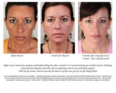 Before, at 30 days, at 90 days.     First she stopped sun bathing and tanning beds and then she used Rodan and Fields Reverse Regimen for sun and age spots along with their Multi Function Eye Cream