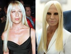 Donatella Versace before and after plastic surgery 04 – Celebrity ...