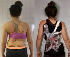 Read about this girl's journey to find a scoliosis brace to avoid surgery! #Scoliosis #ScoliosisBrace #SchrothMethod