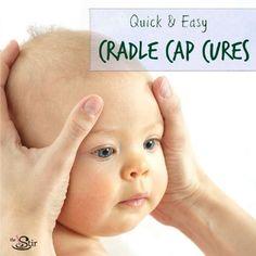 cradle cap cures
