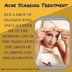 Do you have old scars that remind you of your teen years? Experience scarring or discoloration from Acne in your past? Try these new Young Living Essential Oils recipes for acne scarring! To find out more about how to transform your life one drop at a tim Young Living Oils, Young Living Essential Oils, Doterra Essential Oils, Essential Oil Blends, Oils For Scars, Healing Oils, Living Essentials, Teenager, Keep Calm