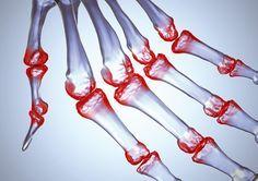 İltihaplı Romatizmada Bitkisel Çözüm Tıpta romatoit artrit olarak bilinen bu hastalık, kötü sonuçları olan ve hafife alınmaması gereken çok ciddi bir hastalıktır. En çok görülen romatizma hastalığıdır. 25-50 yaş arası çoğunlukla bayanlarda görülen bu hastalık, en çok el bileği ve parmaklarındaki küçük eklemleri sistematik bir şekilde etkiler. Etkilenen eklemde şişme, ağrı ve kızarıklık oluşur