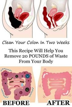 """colon full of stool """"Death begins in the colon"""" - Hippocrates (Recipes to Remove Pounds of Toxic Waste From Your Colon)"""