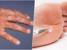 Funkční rady, jak odstranit bradavice, znaménka a další kožní výrustky přírodně a bez chemie!
