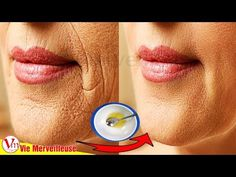 Remove Wrinkles Around Mouth Naturally With This Technique Beauty Tips For Face, Health And Beauty Tips, Home Remedies For Wrinkles, Neck Wrinkles, Wrinkle Remedies, Wrinkle Remover, Tips Belleza, Skin Treatments, Skin Care