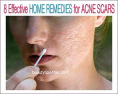 Skin Acne Remedies 8 Effective Home Remedies for Acne Scars Natural Acne Remedies, Home Remedies For Acne, Skin Care Remedies, Pimples Remedies, Scar Remedies, Acne Scar Removal, How To Get Rid Of Acne, Acne Skin, Beauty Tips