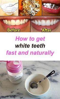 Wonderful Naturally Whiten Your Teeth Ideas Teeth Whitening Remedies One of the most effective natural remedies for teeth whitening is baking soda.Teeth Whitening Remedies One of the most effective natural remedies for teeth whitening is baking soda. Teeth Whitening Procedure, Teeth Whitening Remedies, Charcoal Teeth Whitening, Natural Teeth Whitening, Skin Whitening, Get Whiter Teeth, Dry Skincare, Korean Skincare, White Teeth
