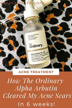 I spent the last 6 weeks clearing my old acne scars that I have had since forever. Here's how The Ordinary Skincare Alpha Arbutin cleared my hyperpigmentation. #theordinaryskincare #acnescars #acnetreatment #skincareproductsthatwork Back Acne Treatment, Natural Acne Treatment, Natural Acne Remedies, Cold Home Remedies, Holistic Remedies, Natural Cures, Natural Health, Herbal Remedies, Health Remedies