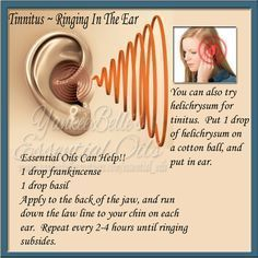 My husband often suffers from Tinnitus, and essential oils have helped him so much. He is a believer!! Disclaimer - Please Read