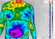 Hepatitis condition in thermography
