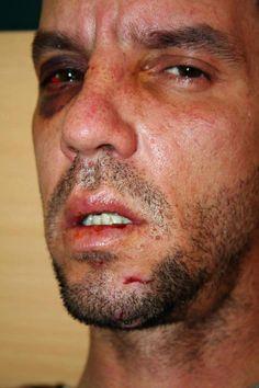 MUY TRISTE! Cubano retenido en Ecuador fue golpeado DESCOMUNALMENTE por un boxeador ruso