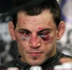 Jon Fitch after his fight with GSP. GSP is just that tough.