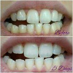 White teeth in just a few days with our amazing TOOTHPASTE