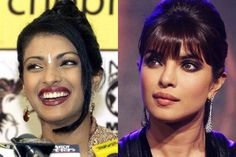 Priyanka Chopra Plastic Surgery Before And After Nose Job, Lip Surgery Priyanka Chopra, Miss World, Lip Surgery, Plastic Surgery Before After, Glamour, Models, Diy Skin Care, Photos, Pictures